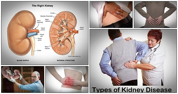 kidney-disease-solution-duncan-capicchiano.jpg